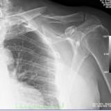 Fratturate 8 costole,clavicola  e scapola sx  e lo scafoide mano dx.